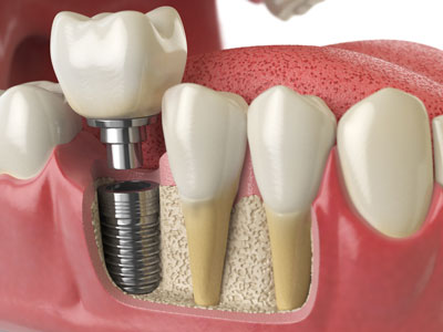 Dental Implant Compared To Real Teeth